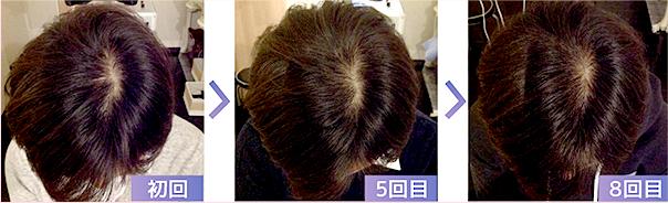 7■ヘアカラーのせいで脱毛症!?