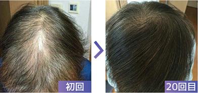 6■「抜け毛がシャンプーのときとっても多く、