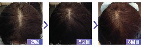 4■脂漏性脱毛症、かゆみ、べたつき