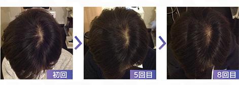 3■皮脂が抜け毛の原因!?